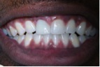 After-DentalImplants-2