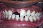 Before-DentalImplants-2