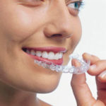 invisalign-tooth-straightening-richview-family-dentistry